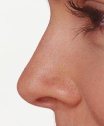 آموزش تصویری فتوشاپ - کوچک کردن بینی